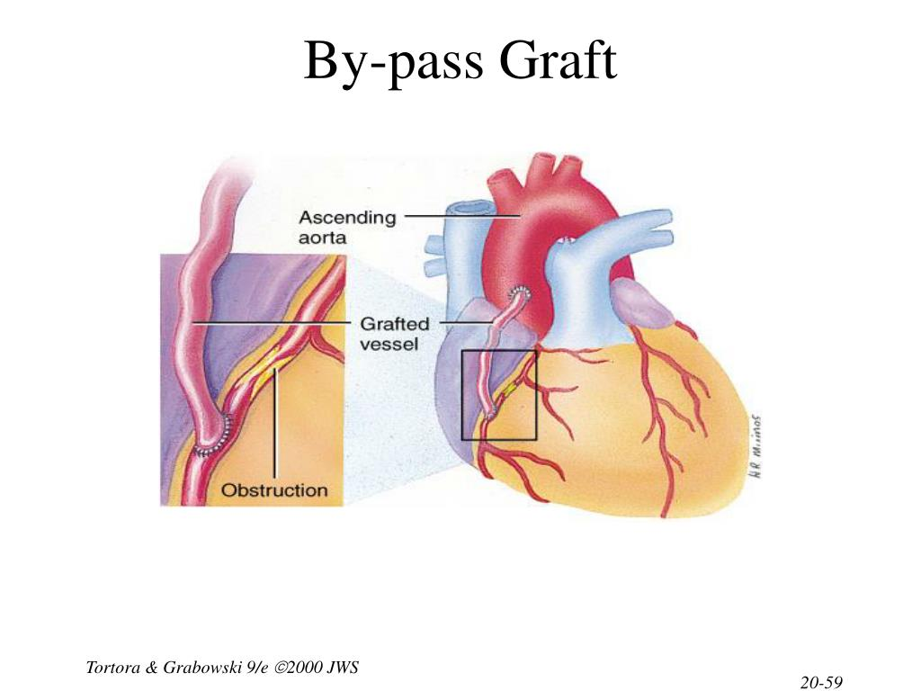 By-pass Graft
