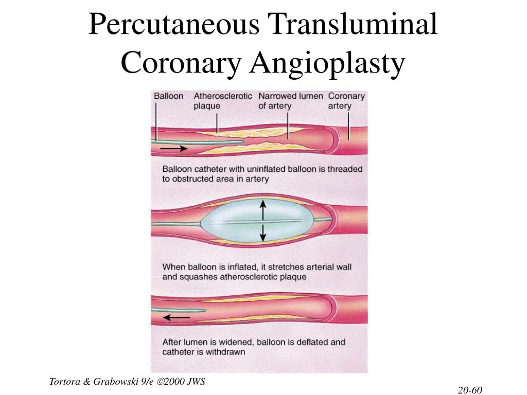 Percutaneous Transluminal Coronary Angioplasty