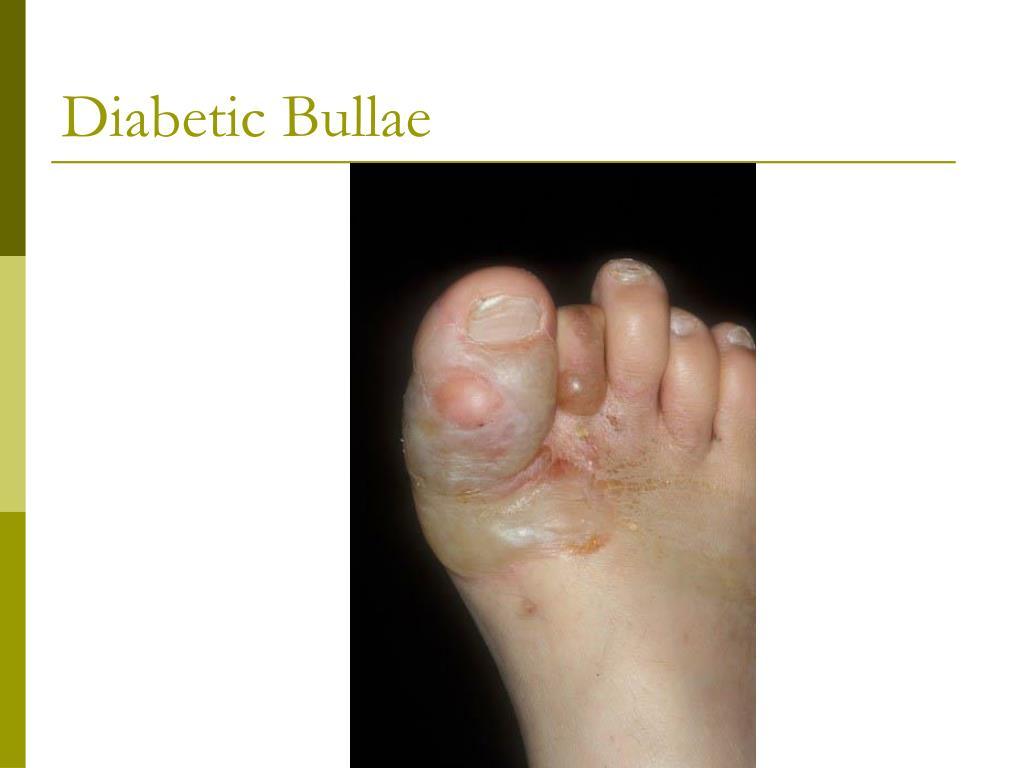 Diabetic Bullae