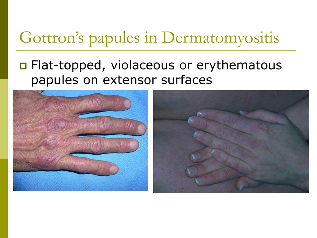 Gottron's papules in Dermatomyositis