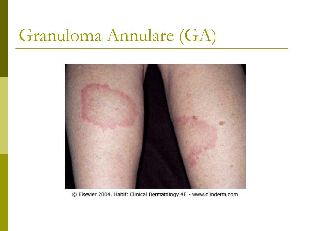 Granuloma Annulare (GA)