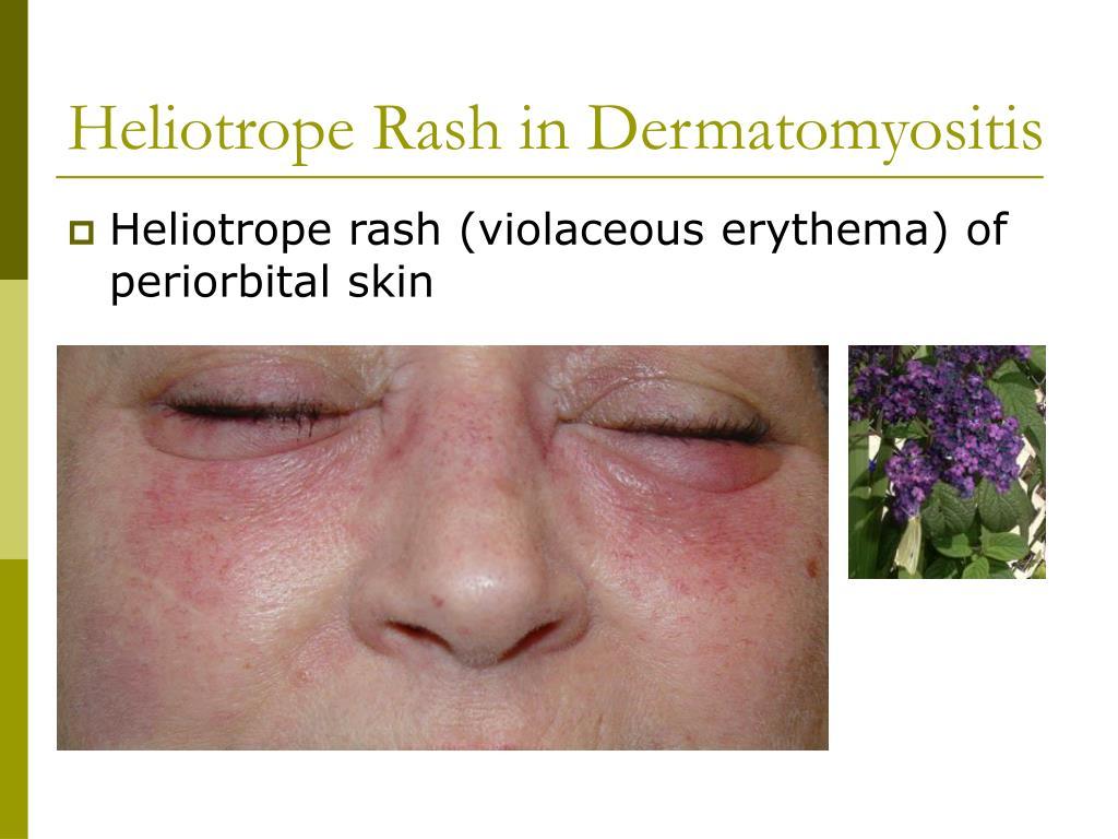 Heliotrope Rash in Dermatomyositis
