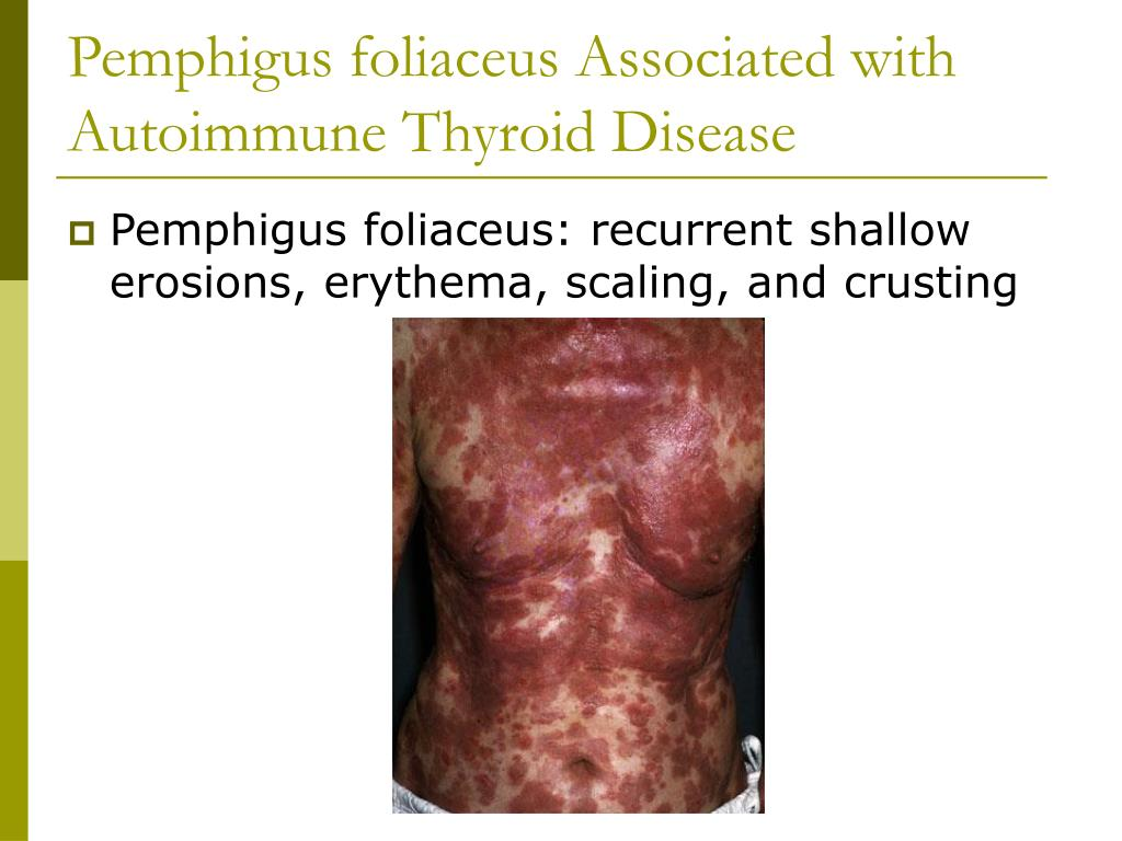 Pemphigus foliaceus Associated with Autoimmune Thyroid Disease