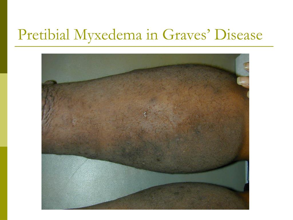 Pretibial Myxedema in Graves' Disease