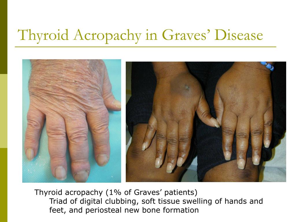 Thyroid Acropachy in Graves' Disease