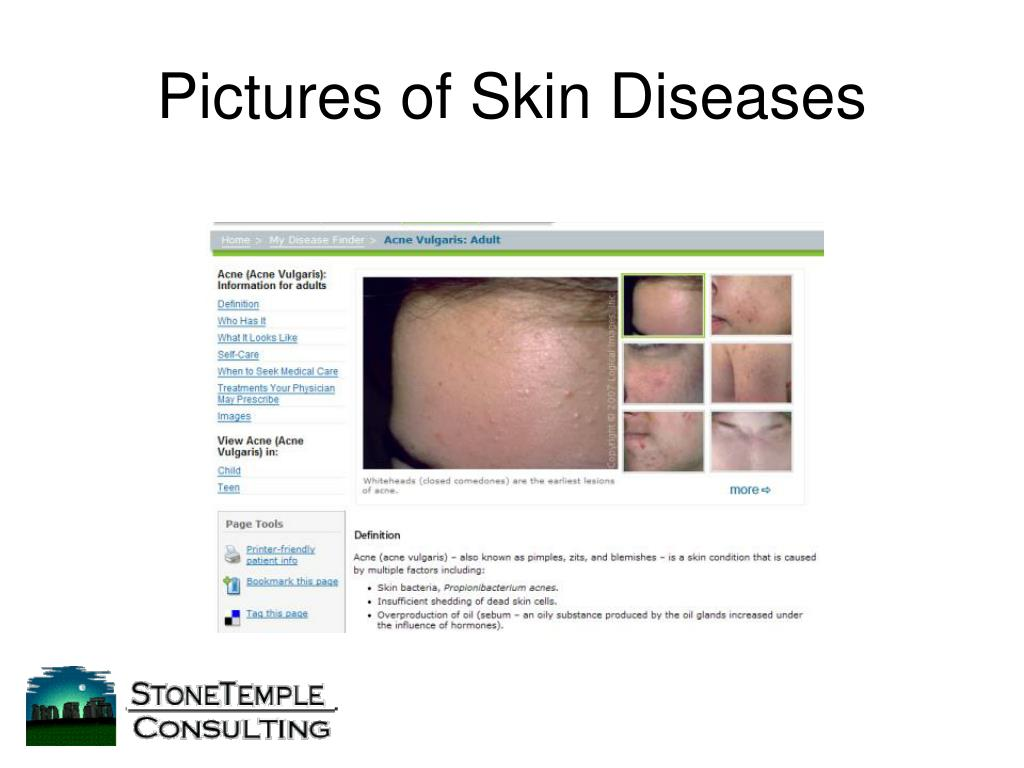 Pictures of Skin Diseases