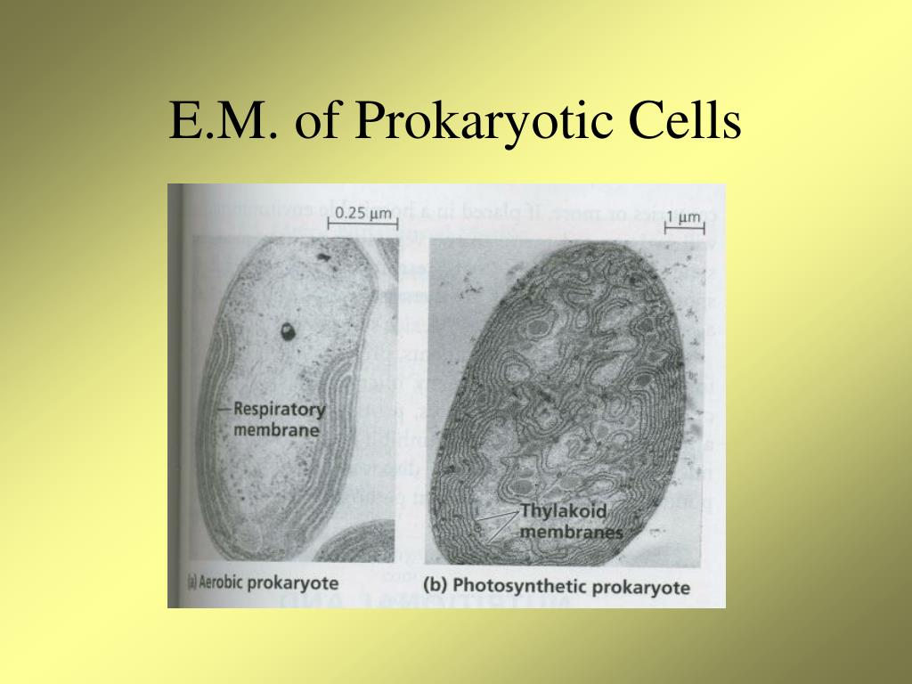 E.M. of Prokaryotic Cells