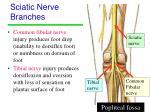 sciatic nerve branches