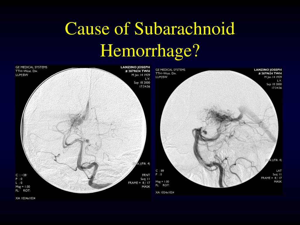 Cause of Subarachnoid Hemorrhage?