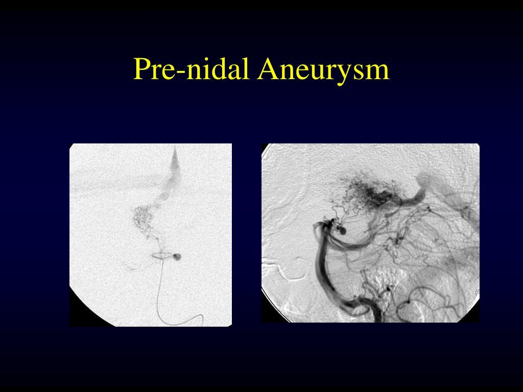 Pre-nidal Aneurysm