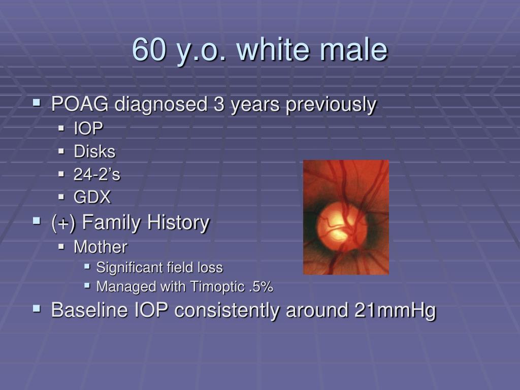 60 y.o. white male