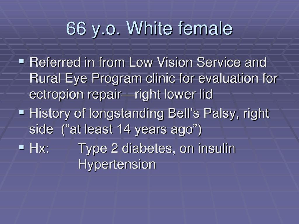 66 y.o. White female