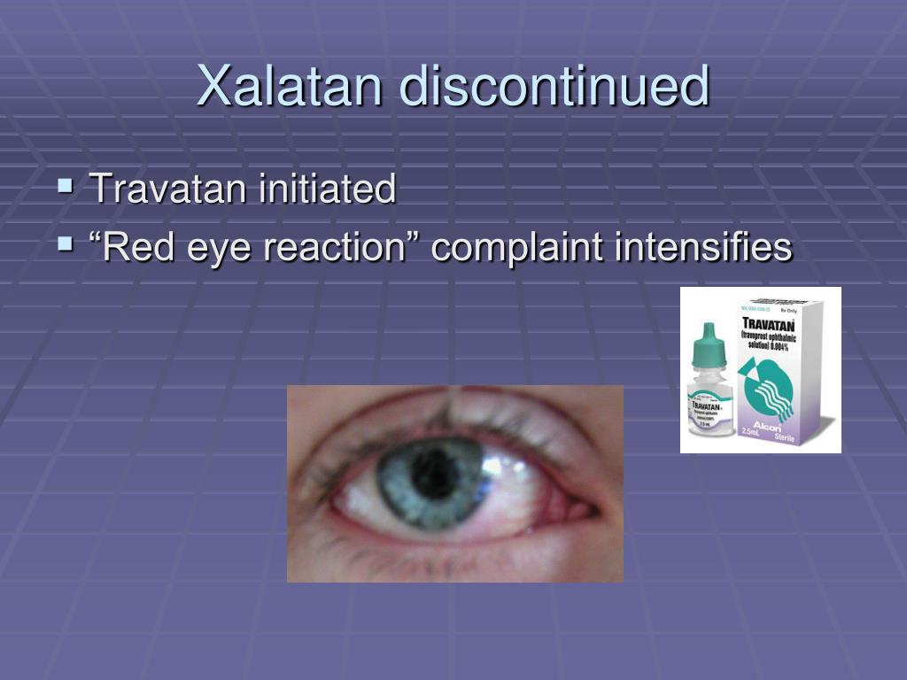 Xalatan discontinued