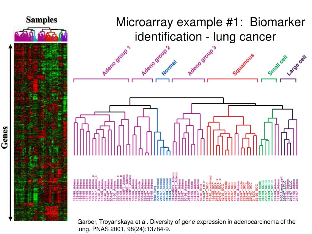 Microarray example #1:  Biomarker identification - lung cancer