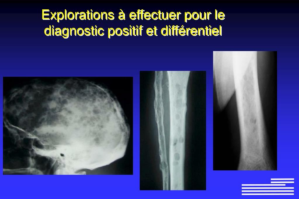 Explorations à effectuer pour le diagnostic positif et différentiel