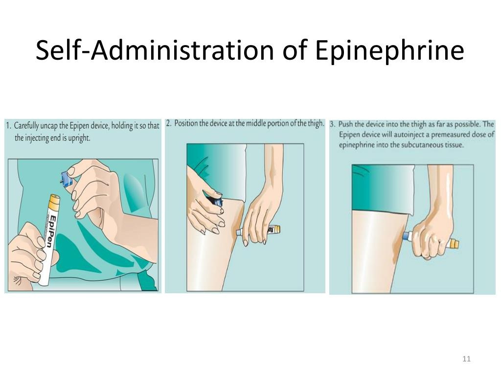 Self-Administration of Epinephrine