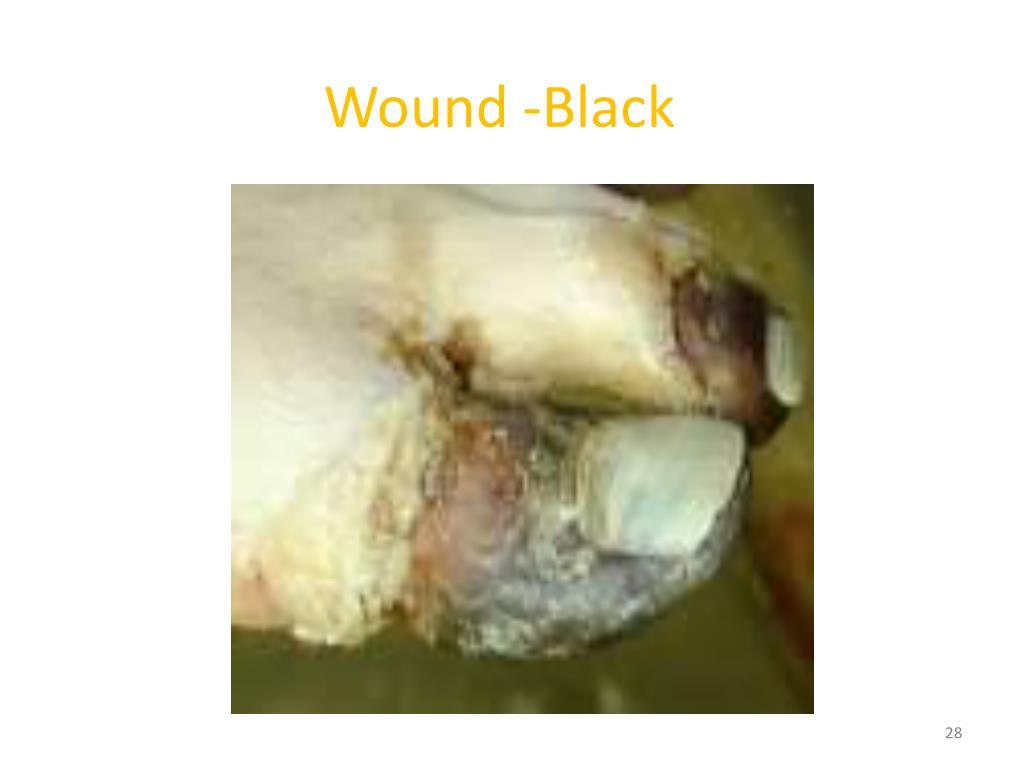 Wound -Black