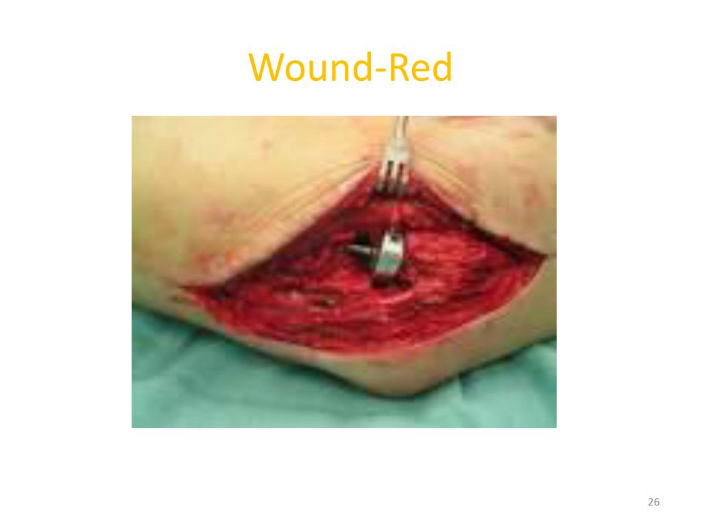 Wound-Red