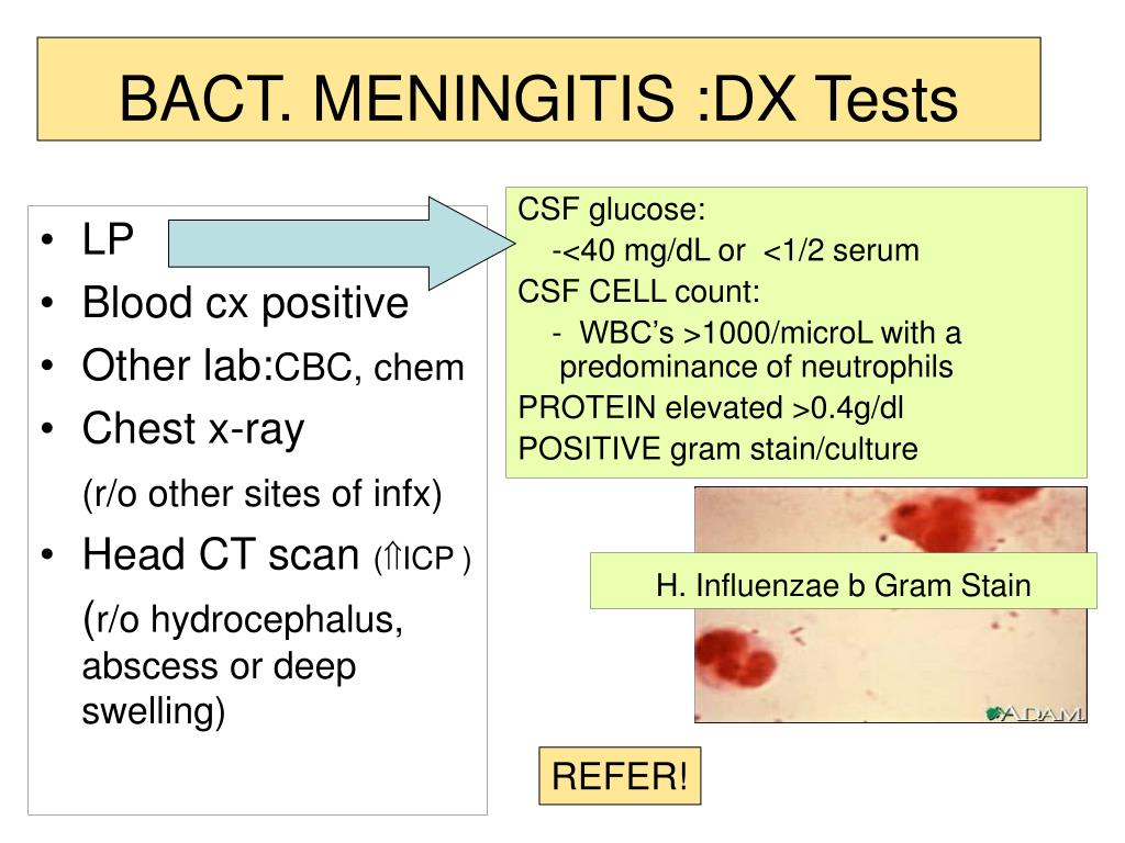 BACT. MENINGITIS :DX Tests