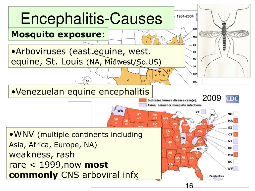 Encephalitis-Causes