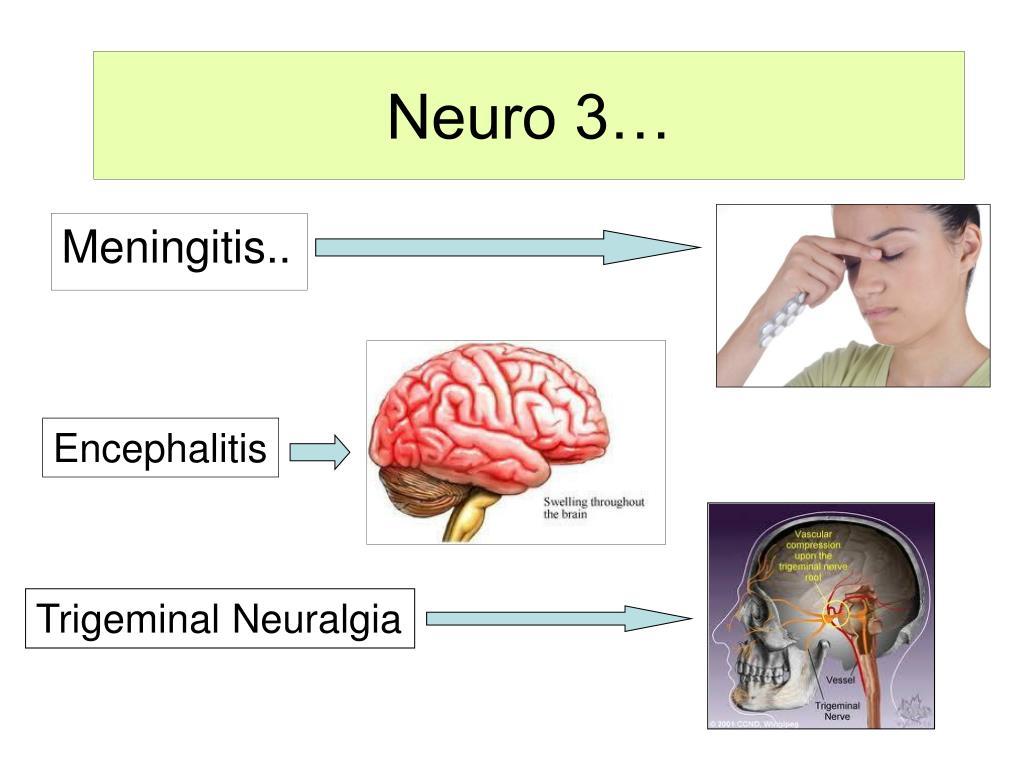 Neuro 3…