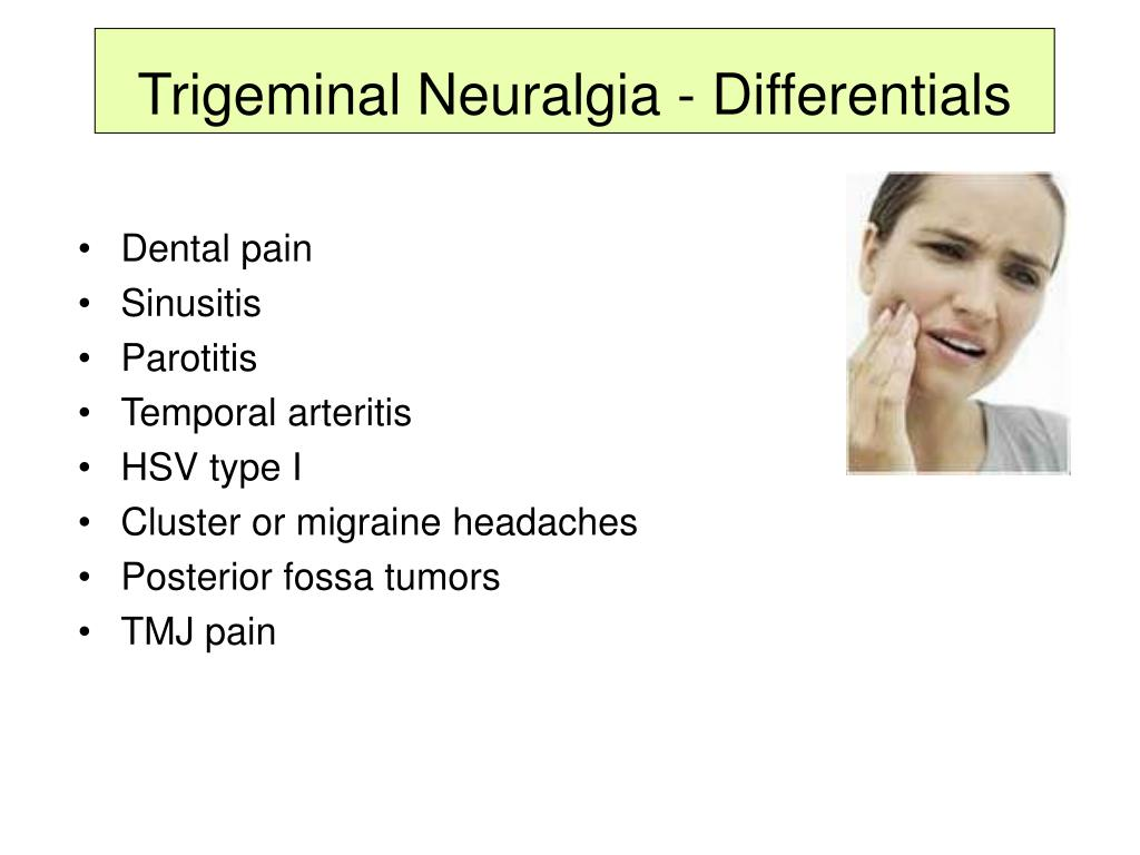Trigeminal Neuralgia - Differentials