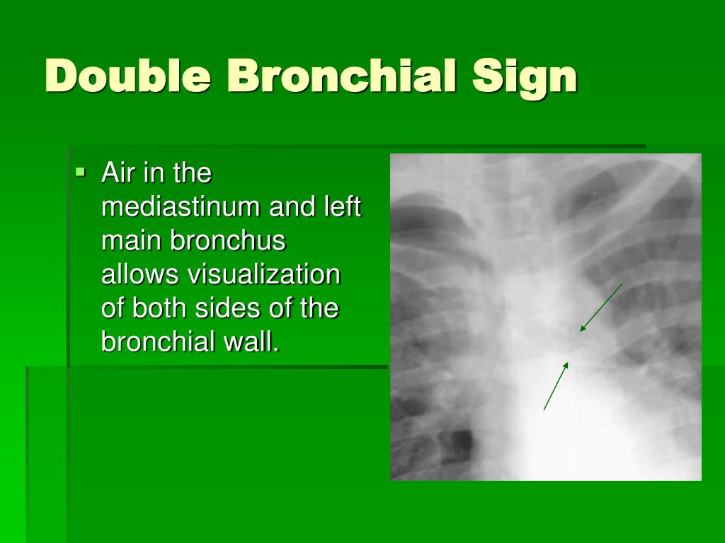 Double Bronchial Sign