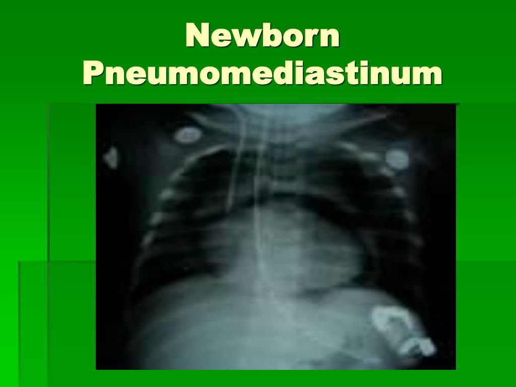 Newborn Pneumomediastinum