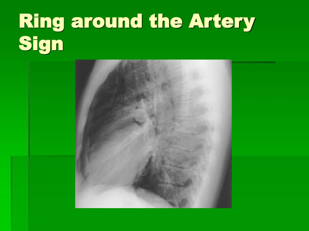 Ring around the Artery Sign