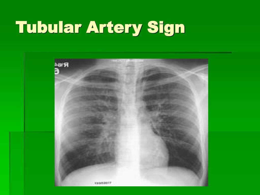 Tubular Artery Sign