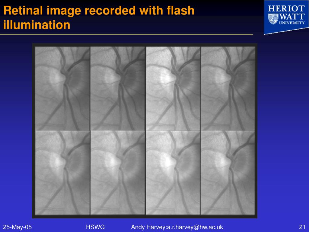 Retinal image recorded with flash illumination