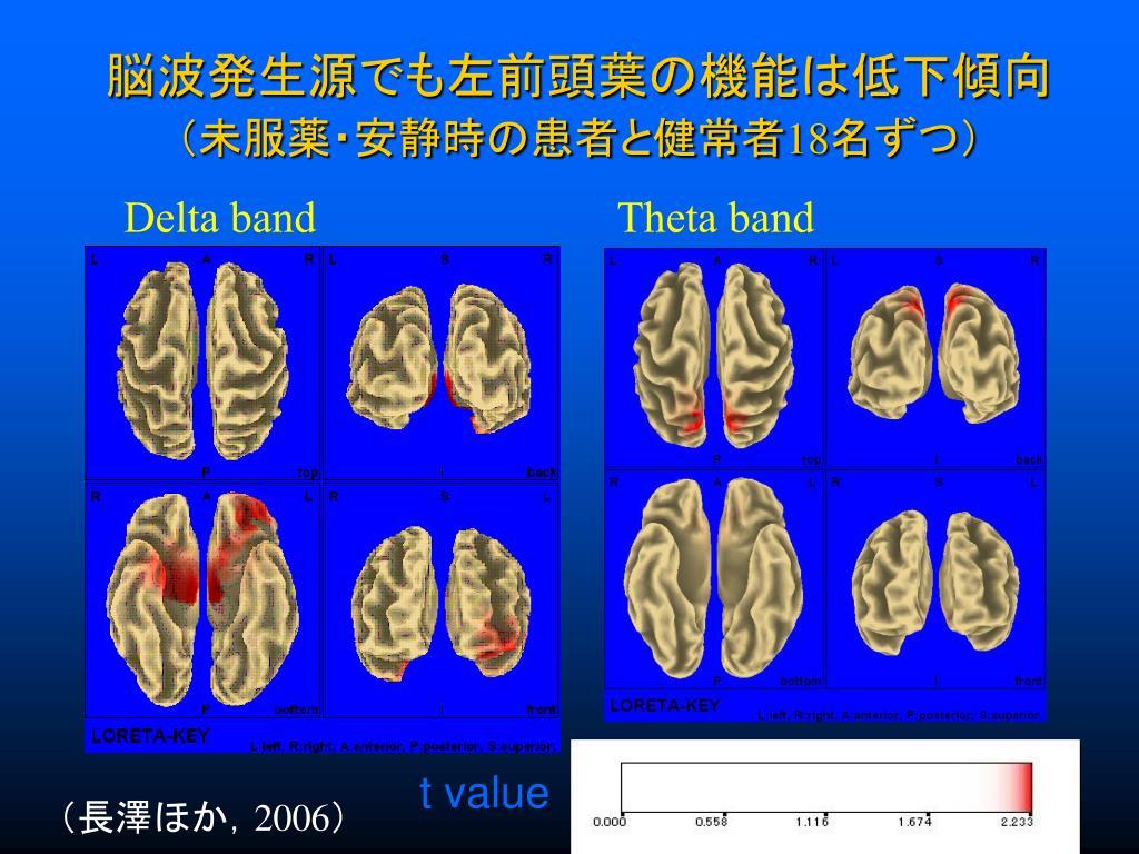 脳波発生源でも左前頭葉の機能は低下傾向