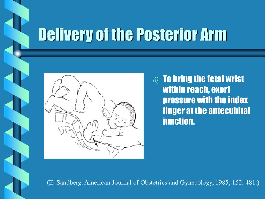 Delivery of the Posterior Arm