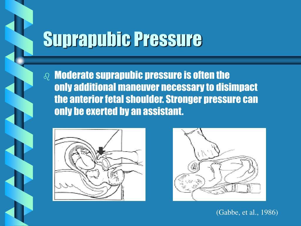Suprapubic Pressure
