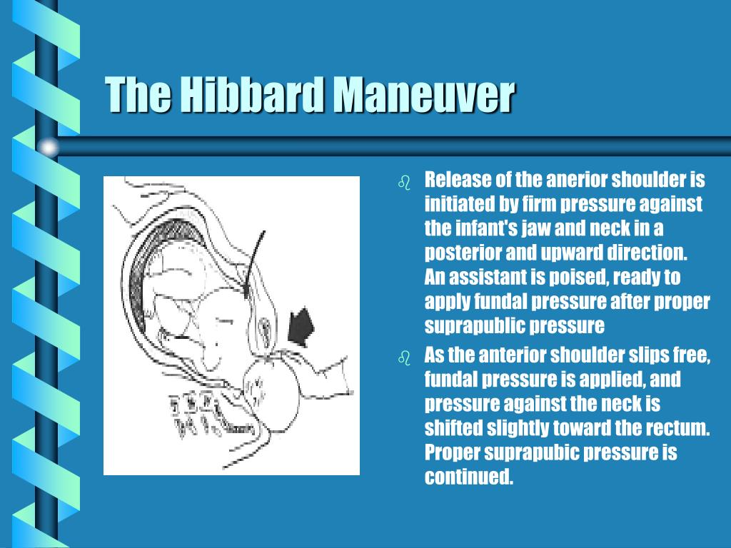 The Hibbard Maneuver