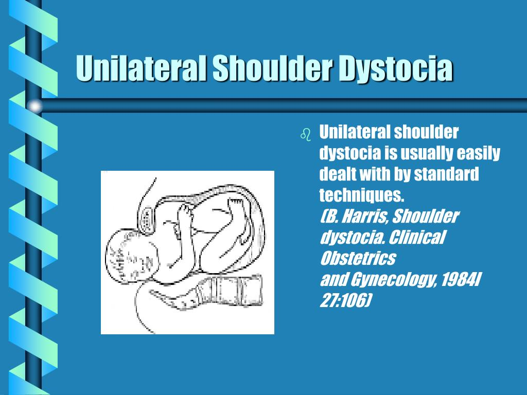 Unilateral Shoulder Dystocia