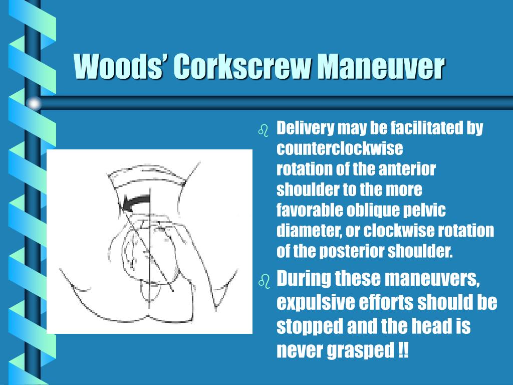 Woods' Corkscrew Maneuver