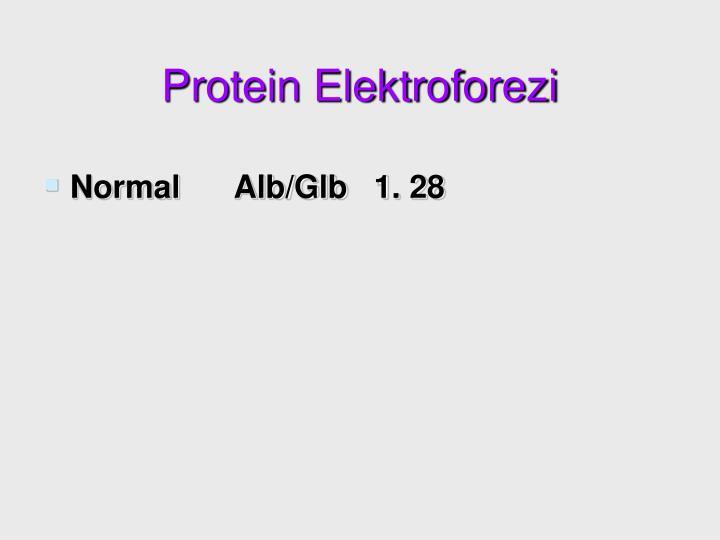 Protein Elektroforezi