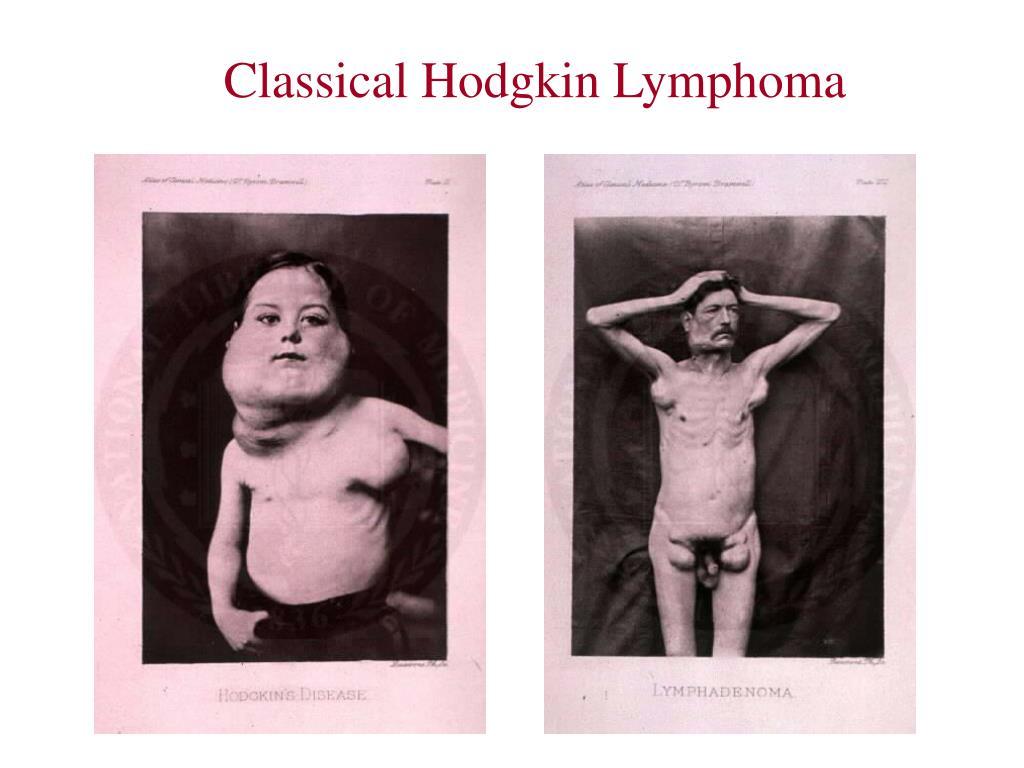 Classical Hodgkin Lymphoma