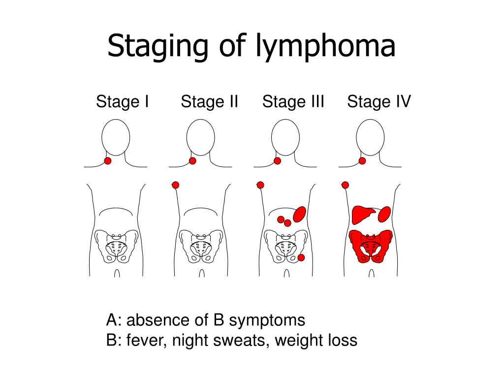 Billing diffuse b cell lymphoma stage 4 not