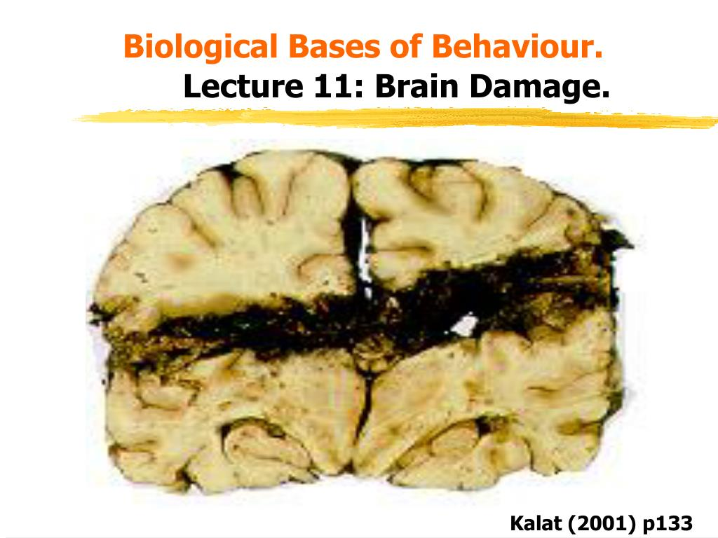 biological bases of behaviour lecture 11 brain damage