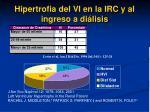 hipertrofia del vi en la irc y al ingreso a di lisis