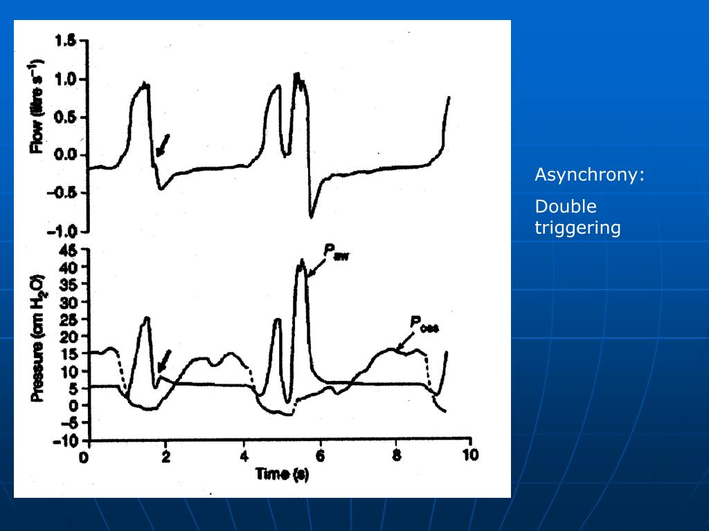 PPT - Ventilator waveform analysis: often ignored bedside ...