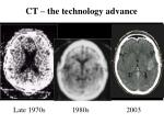 ct the technology advance