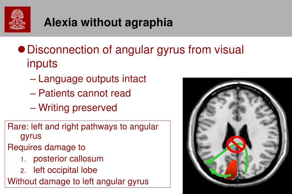 Alexia without agraphia