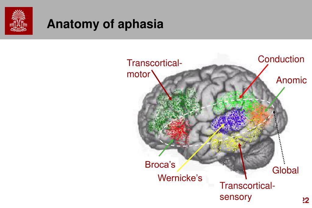 Anatomy of aphasia