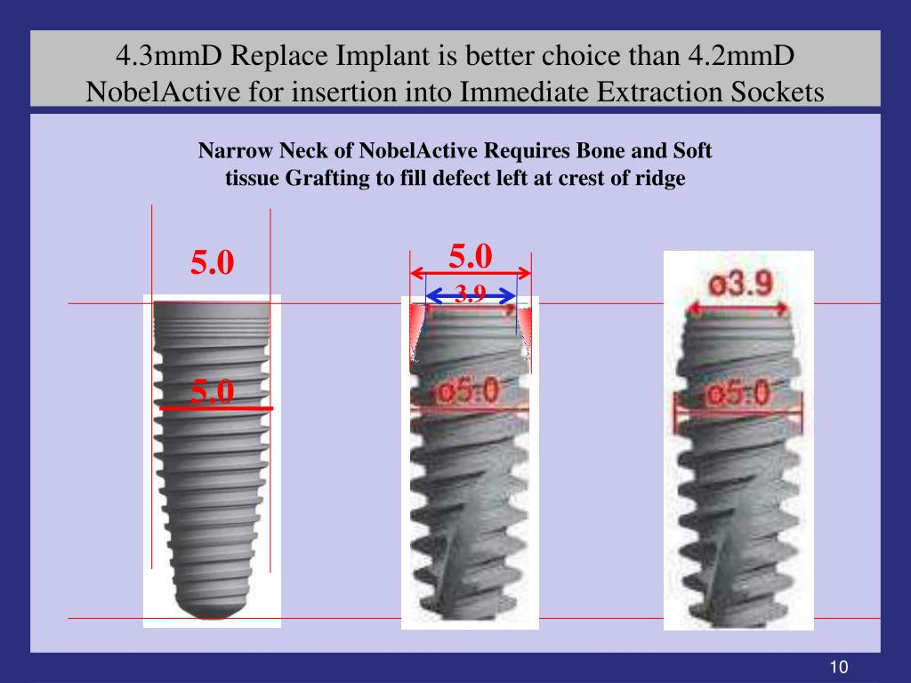 4.3mmD Replace Implant is better choice than 4.2mmD NobelActive for insertion into Immediate Extraction Sockets