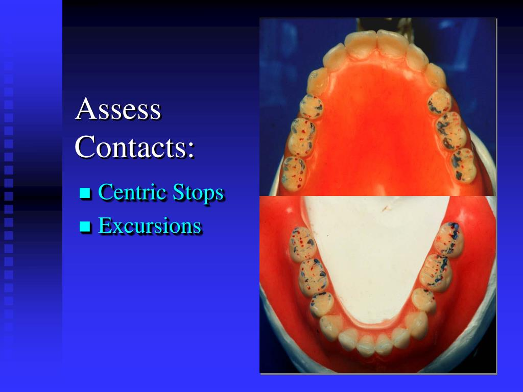 Assess Contacts: