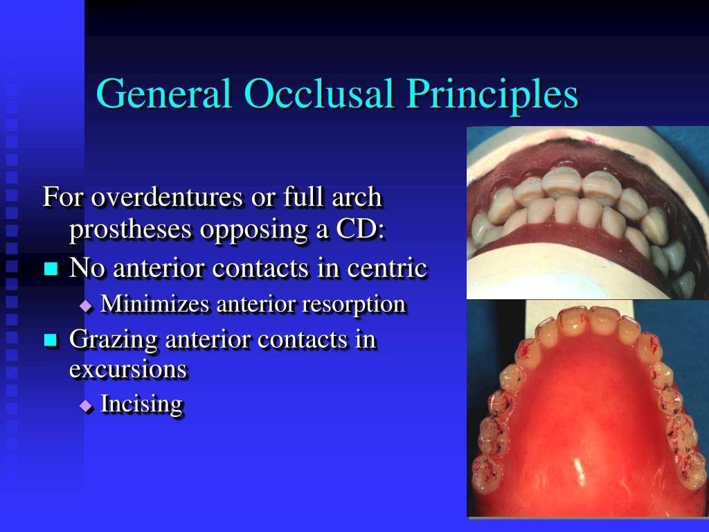 General Occlusal Principles