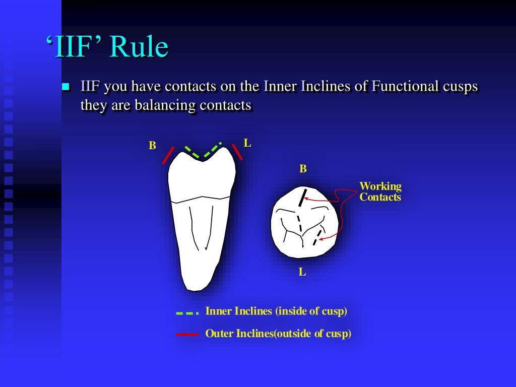 'IIF' Rule